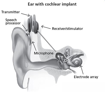 cochlear-implant-web-pic